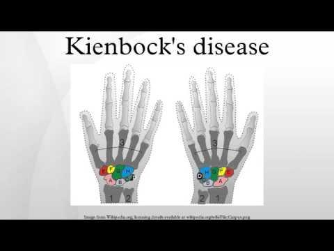 Kienbock's disease - YouTube