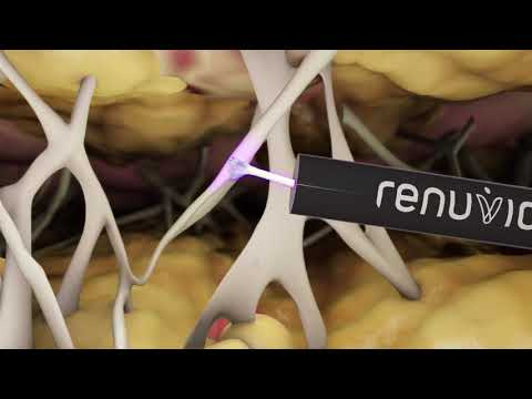 Renuvion Cosmetic Technology Animation