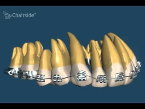 Как ставят имплантанты зубов — этапы имплантации зубов