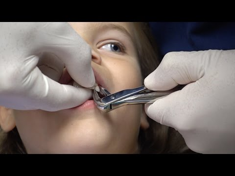 Sunshine gets her tooth pulled by the dentist with Novocain. Is she afraid?