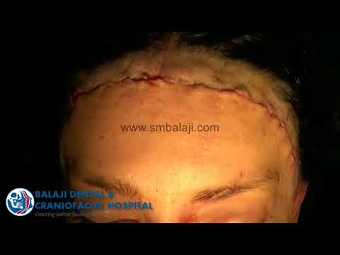 Facial Feminization - Hairline Reduction, Frontal bossing Correction surgery and Reduction..