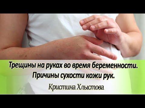 📌 Трещины на руках во время беременности. Причины сухости кожи рук | Кристина Хлыстова