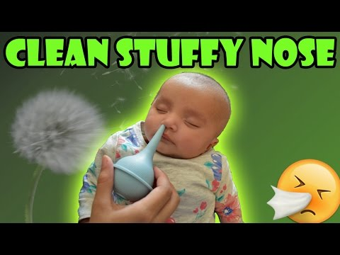 How to Clean a Baby's Nose - Clear Baby's Stuffy Nose