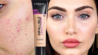 How To Cover Acne and Colour Correct Acne Scars // Collab | Ruby Golani