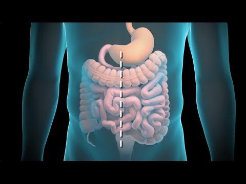 Resección del colon