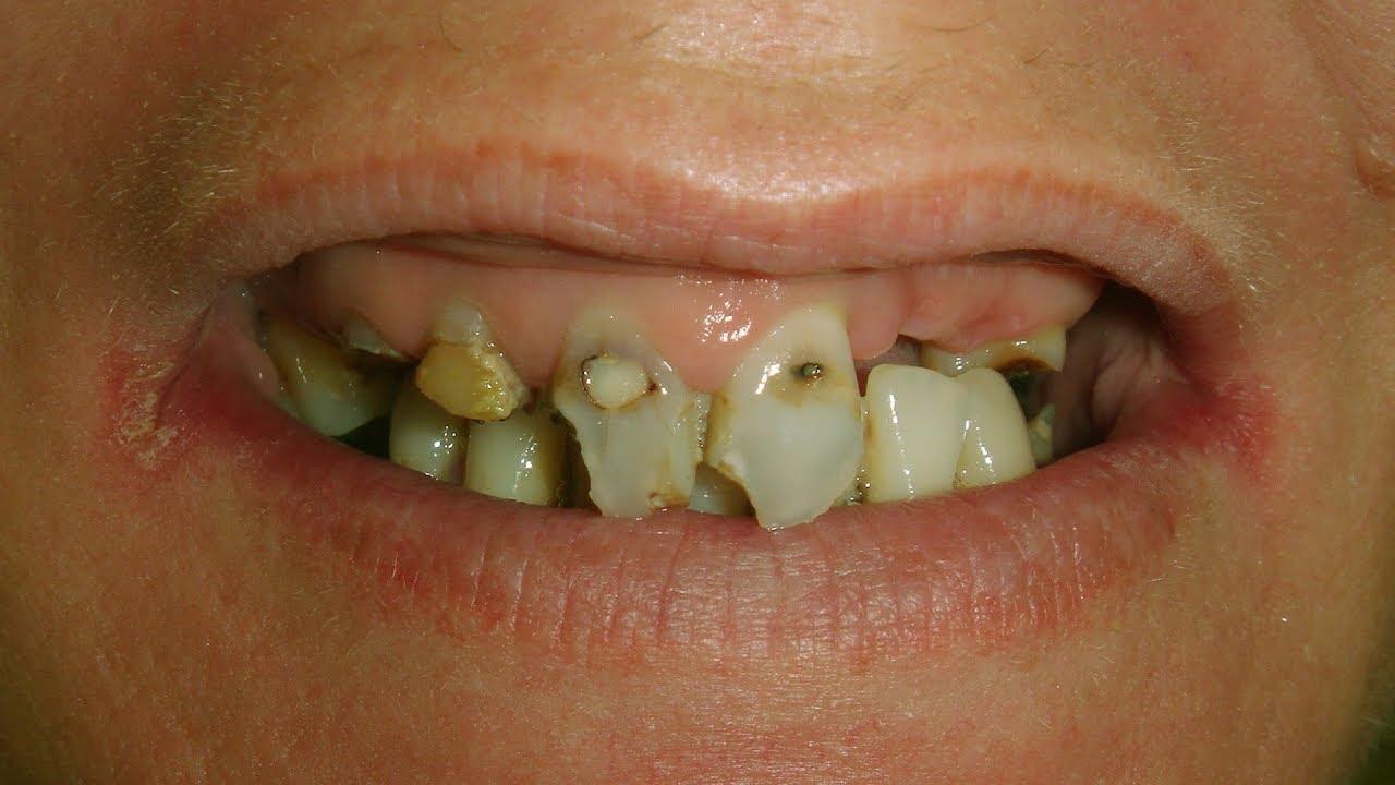 Mini Implants - Wellington Dentists - Mini Implants