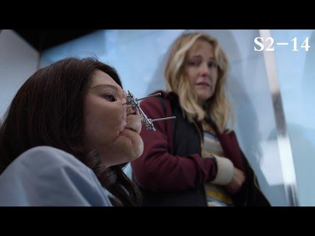 """【良医】女孩的脸受了伤,整11次容后,变成了""""面团脸""""…《良医S2-14》"""