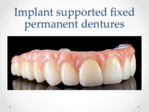 Permanent denture North Palm Beach|Palm Beach|Juno Beach|Palm Beach Gardens