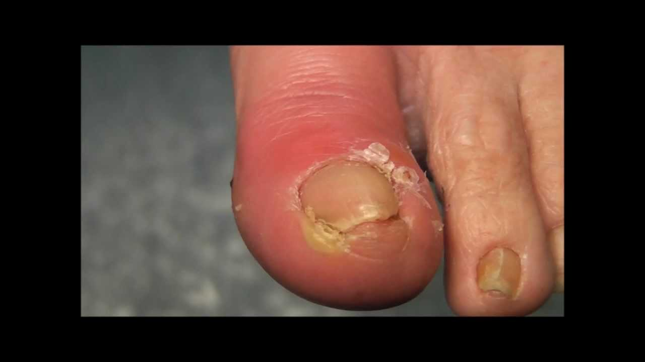Ingrowing Toe Nail on a Diabetic Foot - YouTube