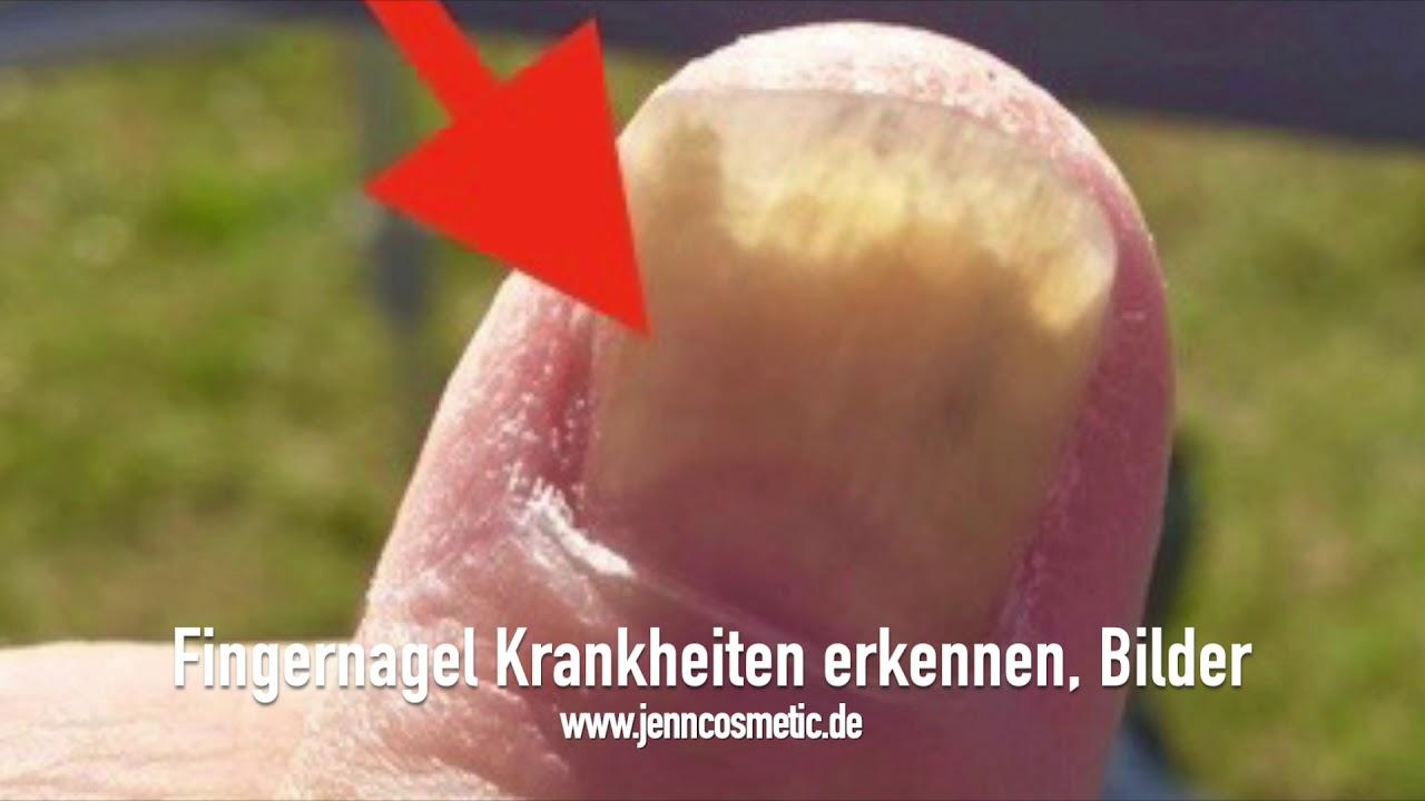 Fingernagel Krankheiten Erkennen Bilder Youtube