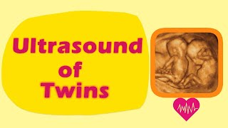 Sonography of Twins