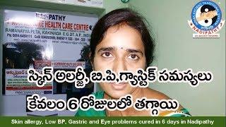 حساسية الجلد, ضغط الدم منخفض المعدة و مشاكل في العين الشفاء في 6 أيام في Nadipathy