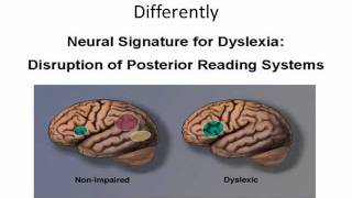 Dyslexia, How The Brain Functions, A New Solution For Dyslexia