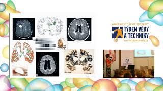 Roztroušená skleróza: mýty a skutečnosti