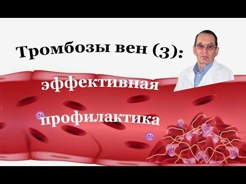 Тромбозы вен (3):  Профилактика тромбозов при обычном, повышенном и высоком риске. Знания для всех.