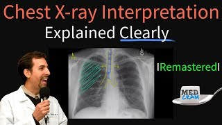 Chest X Ray Interpretation Explained Clearly - How to read a chest Xray