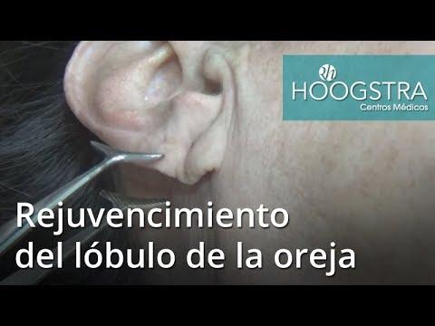 Rejuvencimiento del lóbulo de la oreja (17139)