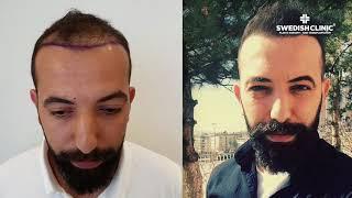 Avant et après la greffe de cheveux