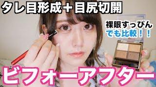 【すっぴん&フルメイク】整形前と比べる thumbnail