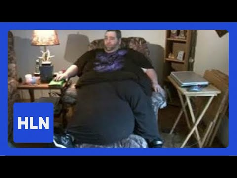 Watch: The man with the 100-lb scrotum