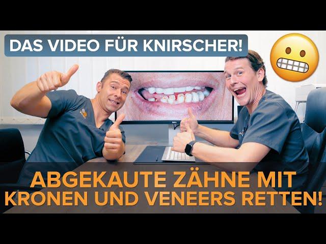 Knirscher aufgepasst! Die Rettung für abgekaute Zähne dank Kronen und Veneers! 🚀🌟