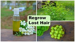 Regrow Lost Hair Naturally on Bald Spots & Forehead Fast For Men & Women | Herbal Hair Regrowth Oil