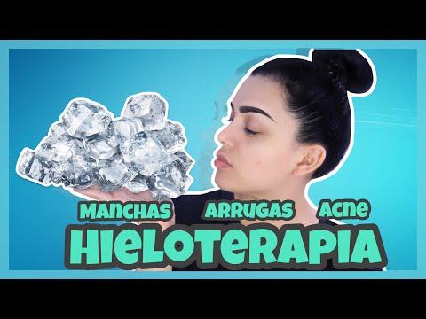 ELIMINA ARRUGAS MANCHAS Y ACNÉ CON HIELOTERAPIA