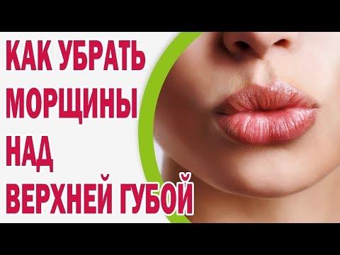 Как одолеть морщины над верхней губой