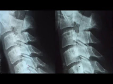 Proof that you can fix bone spurs in the spine without surgery
