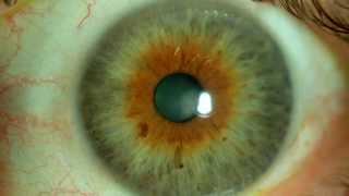 El color de los ojos: ojos avellana, ámbar y marrones. Centro de Oftalmología Bonafonte. Barcelona.