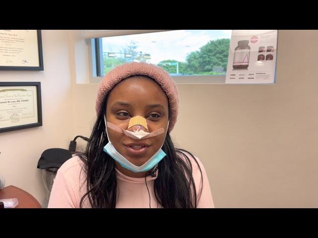 Dallas Ethnic Rhinoplasty/ Nose Job Testimonial