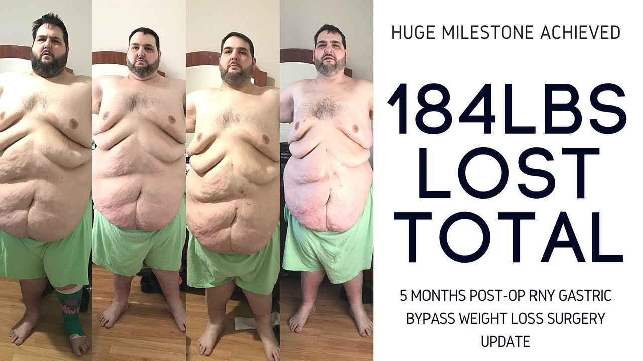 Weight loss real story