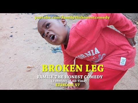 BROKEN LEG (Family The Honest Comedy) (Episode 57)