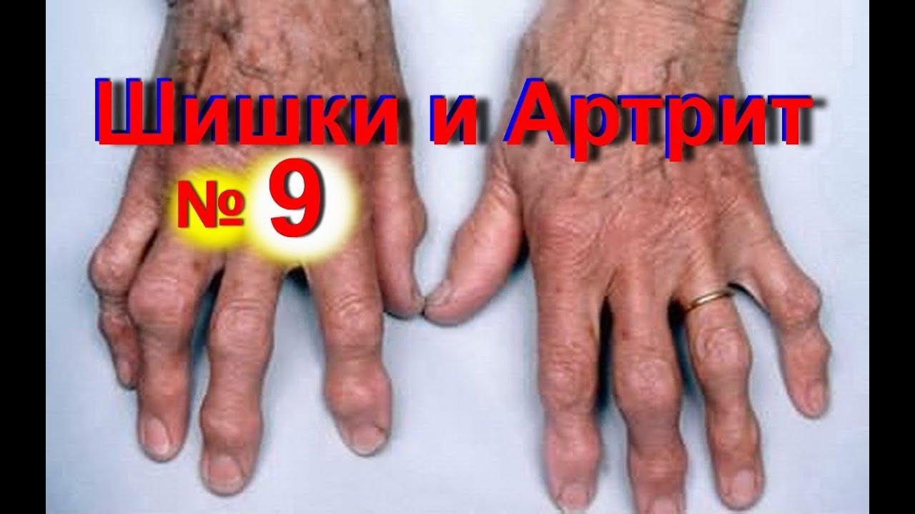 Артрит суставов рук магией очищение кишечника суставов от солей