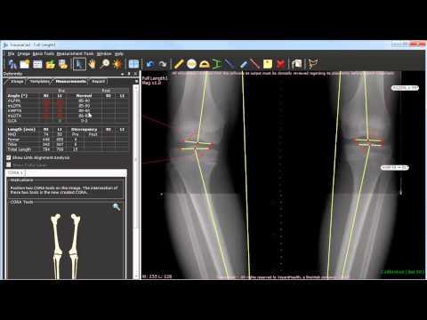 Deformity Correction Planning