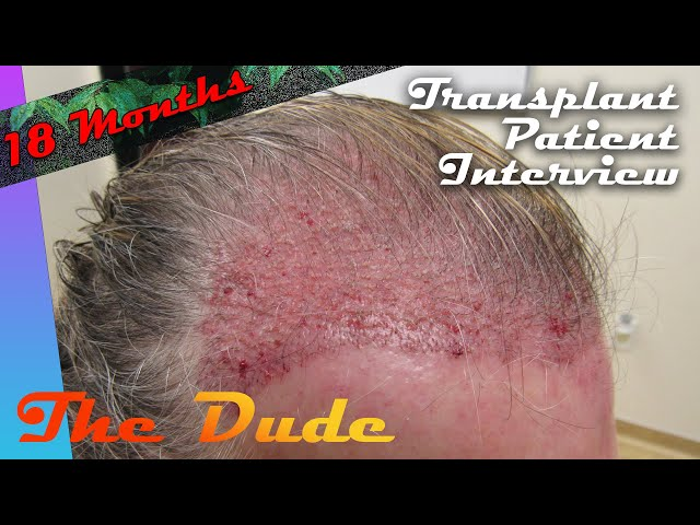 Hair Transplant Results - Patient Interview with The Dude