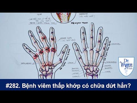 # 282. Viêm thấp khớp có thể chữa dứt hẳn? Cập nhật chẩn đoán và chữa trị