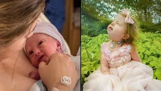 Nasty Nurse Says No One Should 'Want A Baby Like That ' Mom's Response Leaves Her Dumbfounded