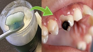 Why Dentists Don't Want To Tell You This? An Easy Way To Fight Cavities With Coconut Oil At Home!
