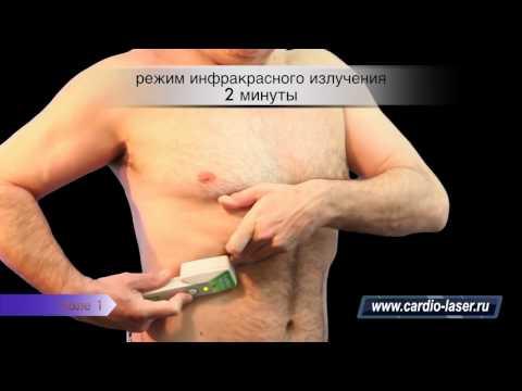 Атеросклероз сосудов головного мозга, атеросклероз нижних