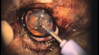 удаление катаракты. Собака. 11 лет