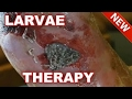 Larvae Therapy. ( How to treat wounds with maggots ? ) AAHC