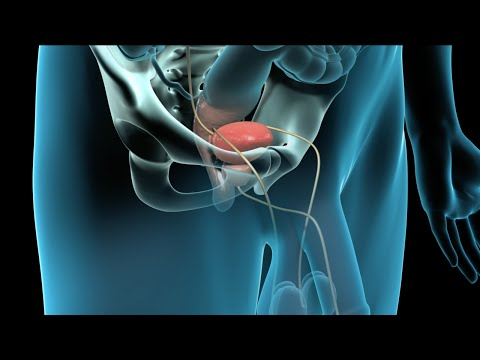 radical-prostatectomy-(prostate-cancer-surgery)