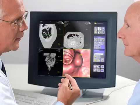 Фиброколоноскопия ФКС - ответы на все вопросы.