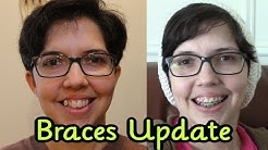 Adult Braces Update (Month 1-4)