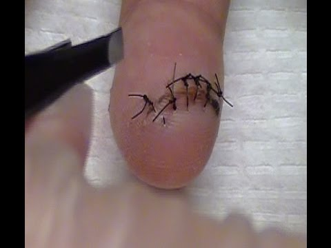 Removing Stitches at home  Taking out stitches