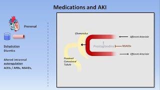 Acute Kidney Injury (Part 1/3 - Definitions and Etiologies)