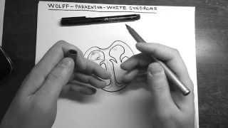 Синдром WPW (Вольфа-Паркинсона-Уайта) | ЭКГ(Wolff Parkinson White Syndrome ВПВ синдром Синдром Вольфа-Паркинсона-Уайта ЭКГ при ВПВ / WPW Какая будет ЭКГ при синдроме..., 2015-02-25T21:41:52.000Z)