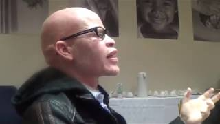 Mpho Tjope: Albinism shows that black and white can co exist