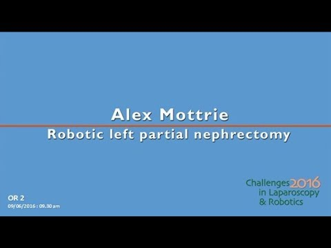 CILR 2016 - Alex Mottrie - Robotic left partial nephrectomy
